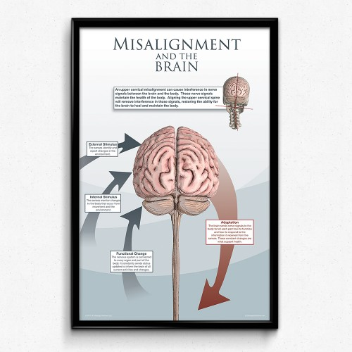 Upper Cervical Misalignment and the Brain Poster