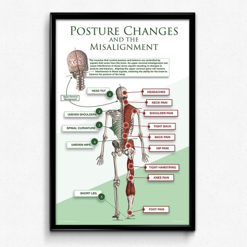 Posture Changes from Upper Cervical Misalignments