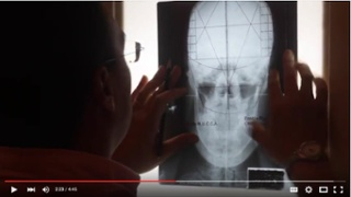 Video Testimonials for Upper Cervical Practices