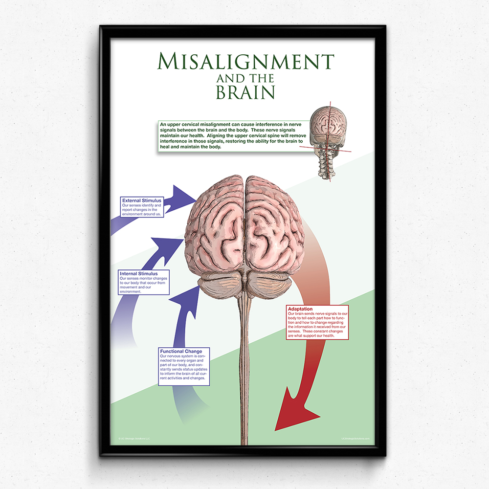 Misalignment and the brain poster