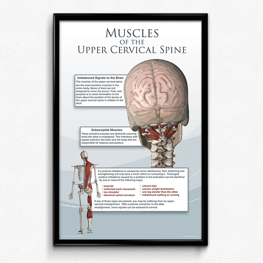 Muscles of the Upper Cervical Spine Poster | 2 sizes