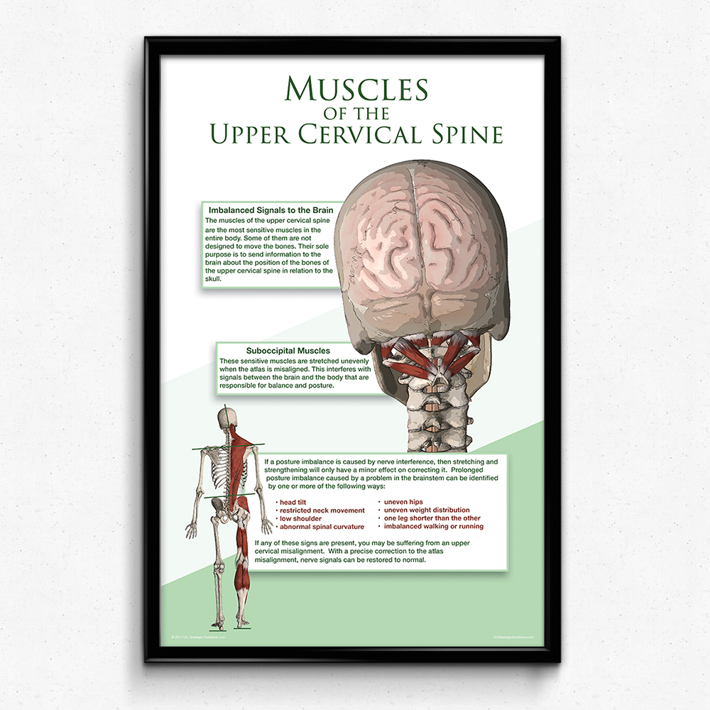 Muscles Of The Upper Cervical Spine Poster 2 Sizes