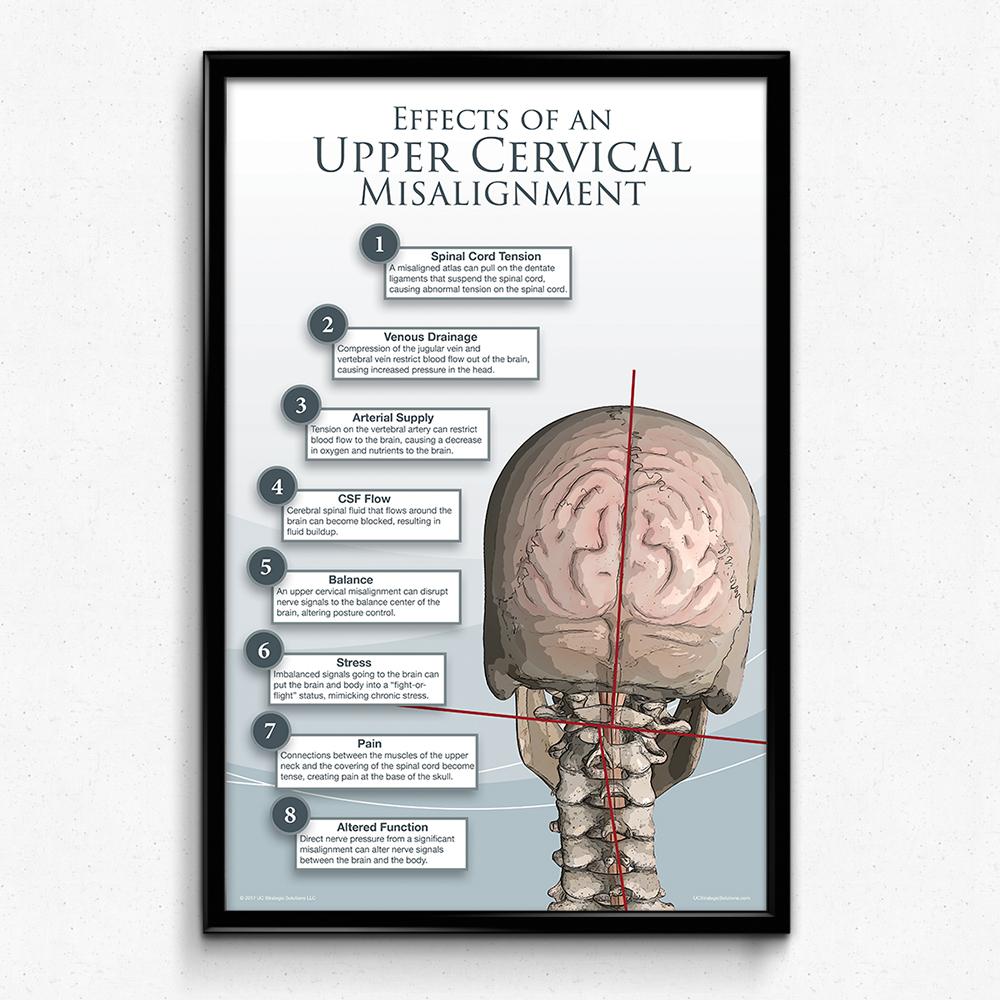 Upper Cervical Subluxation Poster