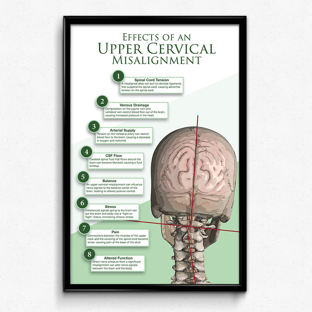 Effects of the Upper Cervical Misalignment Poster | two sizes