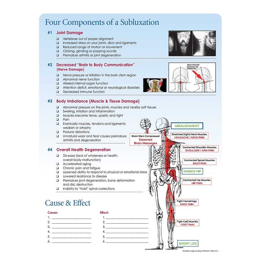 4 components of partial dislocation