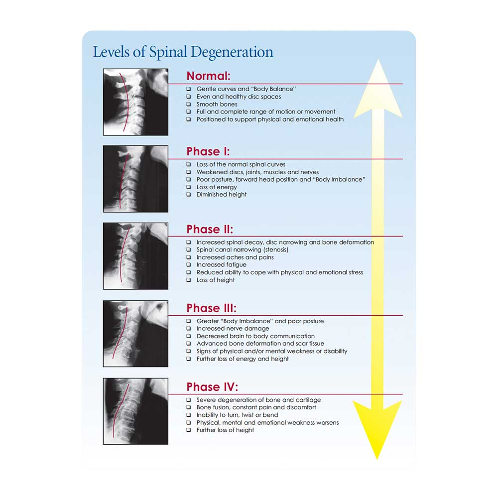 Phases of Spinal Degeneration