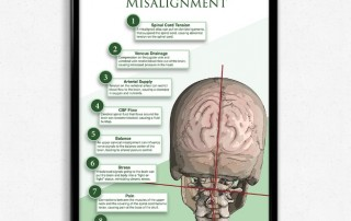 effects of upper cervical misalignment