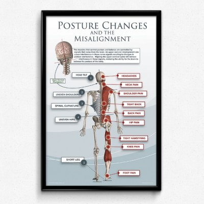 posture changes and the misalignment